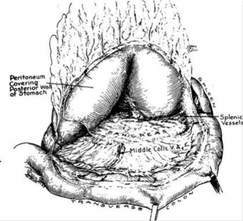 Massachusetts Medical Society Gastric Surgery
